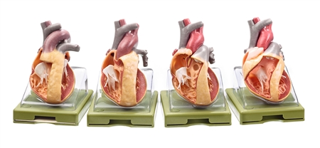 SOMSO Series of Models Representing Congenital Organic Heart Defects
