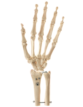 SOMSO Skeleton of Hand with Base of Forearm, rigid
