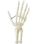 SOMSO Hand Skeleton with Forearm Connection (Elastic Mounting)
