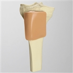 Proximal Tibia with Skin Patch for SB151713 - SB1125291