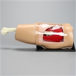 Arthroscopy Hip Model On Basic Stand | Arthroscopic Hip Model