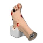 'Wilma' Wound Foot Model, Light - VT0950