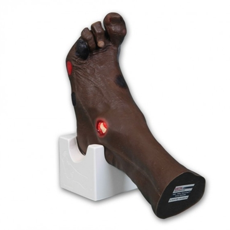 Foot wound Model | Medical Foot care Model | Foot Wound care Model | Wilma Wound Foot Model VT0950 | VATA Wilma Wound Foot Model number VT-0955