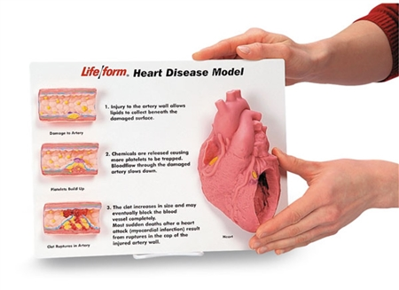 Artery and Heart Disease Display