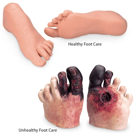 Healthy and Unhealthy Foot Care Set