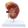 Kidney Model & Adrenal Gland 3x Life Size