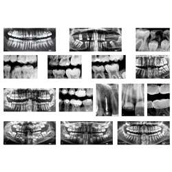 Dental Xrays, R-59269