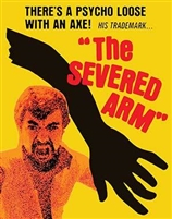 The Severed Arm: Limited Edition (Exclusive)