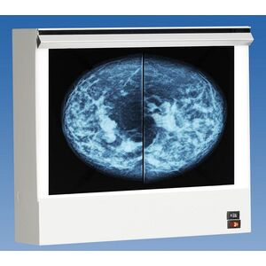 VuPlus Mammography Illuminator Single Unit 2 Film Viewing (28001)