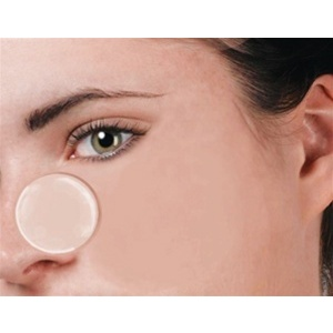 Acne Collagen Spot Patch (UQ-60)