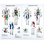 "Sclerotome Pain Charts 22"" X 36"" Set Of 2 (573 015"