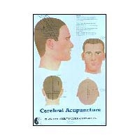Cerebral Acupoint Chart (573 0513)