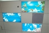 Medical Dental Office Sky Light Ceiling Panels Fluorescent Fixtures Skylight