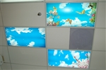 Medical Dental Office Sky Ceiling Panels Fluorescent Lighting Fixtures