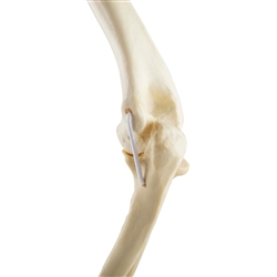 ORTHObones Standard Elbow, right