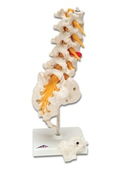 Prolapsed Lumbar Section Model
