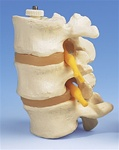 3 Lumbar Vertebrae, flexibly mounted