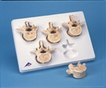 Set of 5 BONElike™ Lumbar Vertebrae