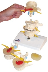 Stages of disc prolapse and lumbar vertebral degeneration