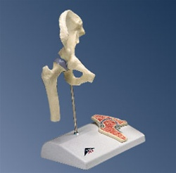 Mini Hip Joint with cross-section