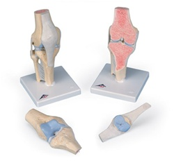 Sectional knee joint model, 3 part