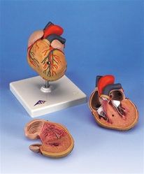 Classic Heart with Left Ventricular Hypertrophy (LVH), 2 part anatomical model