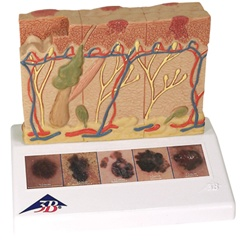 Skin Cancer Anatomy Model