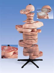 Disc-Torso Model, 15 slices