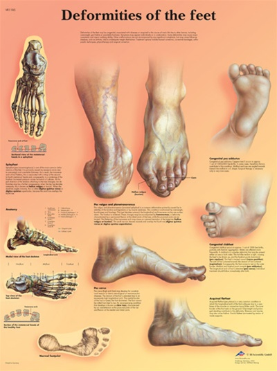 Deformities Of The Feet Anatomical Chart Anatomy Poster
