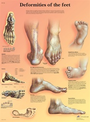 Deformities of the Feet - Anatomical Chart