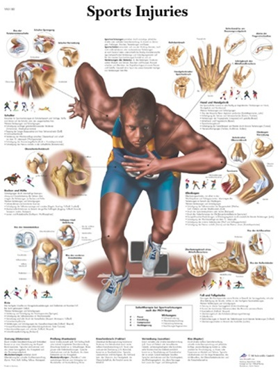 Sports Injuries Anatomical Chart Anatomy Poster Anatomical