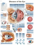 Diseases of the Eye - Anatomical Chart