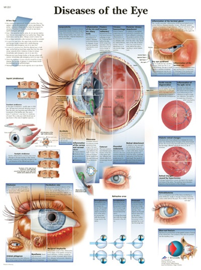 Diseases Of The Eye Anatomical Chart Anatomy Poster Anatomical