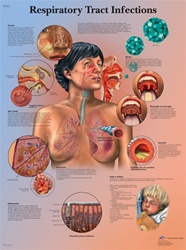 Respiratory Tract Infections - Anatomical Chart