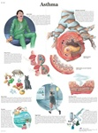 Asthma Anatomical STICKYchart