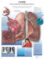 COPD - Anatomical Chart