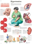 Hypertension Anatomical STICKYchart