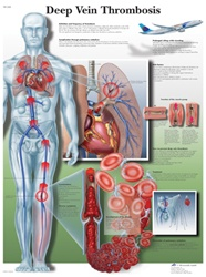 Deep vein Thrombosis - Anatomical Chart