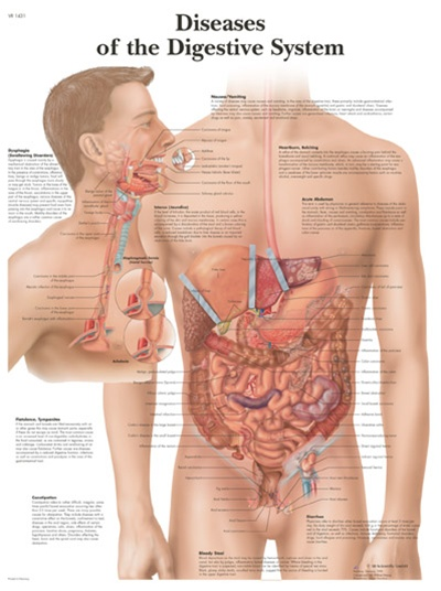Diseases Of Digestive System Anatomical Chart Anatomy Poster