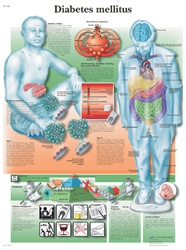 Diabetes mellitus - Anatomical Chart