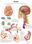 Stroke - Anatomical Chart