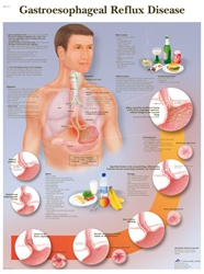 Reflux Disease - Anatomical Chart