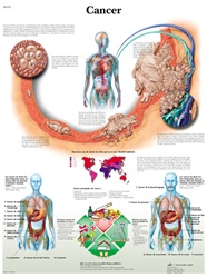 Cancer - Anatomical Chart