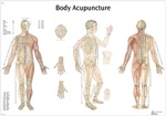 Body Acupuncture - 38.5x26.7in - Anatomical Chart