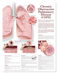 Chronic Obstructive Pulmonary Disease (COPD) Anatomical Chart, 2nd Edition