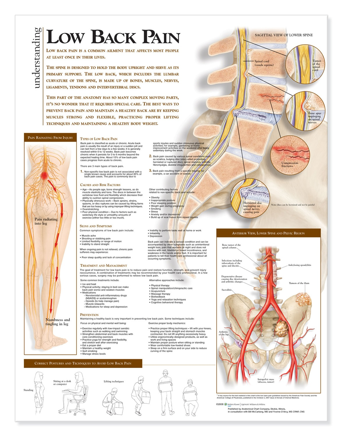 Understanding Low Back Pain Anatomical Chart Anatomy Models And