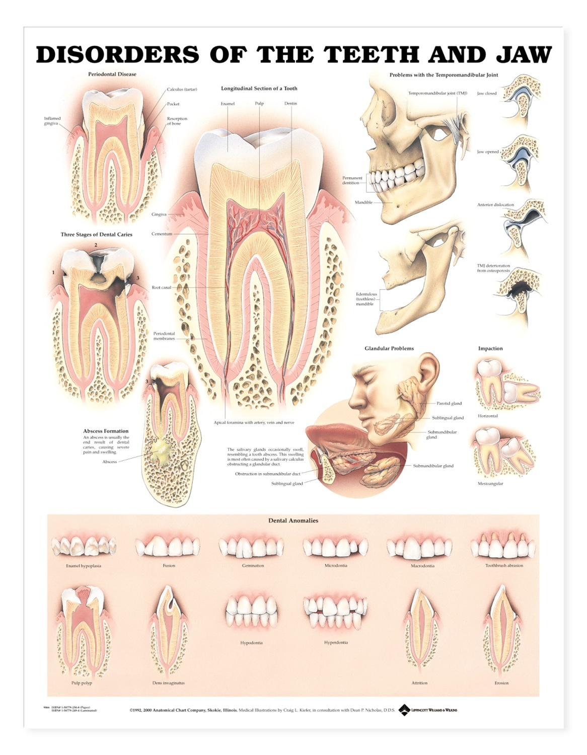 Disorders of the Teeth and Jaw Anatomical Chart - Anatomy Models and ...