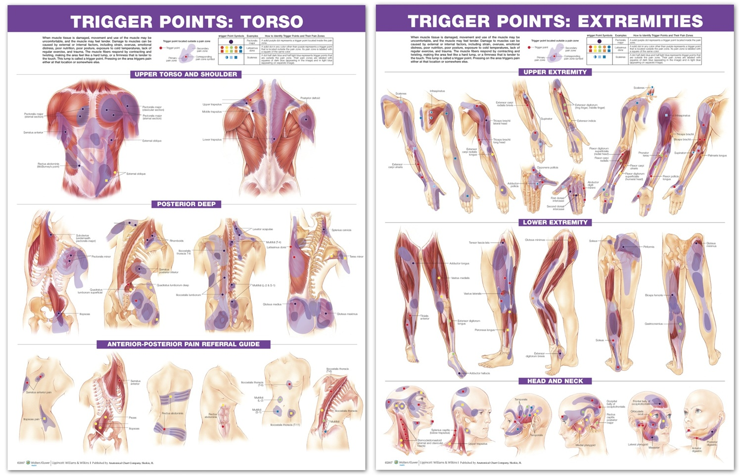 Trigger Point Anatomical Chart Set: Torso & Extremities, 2nd Edition ...