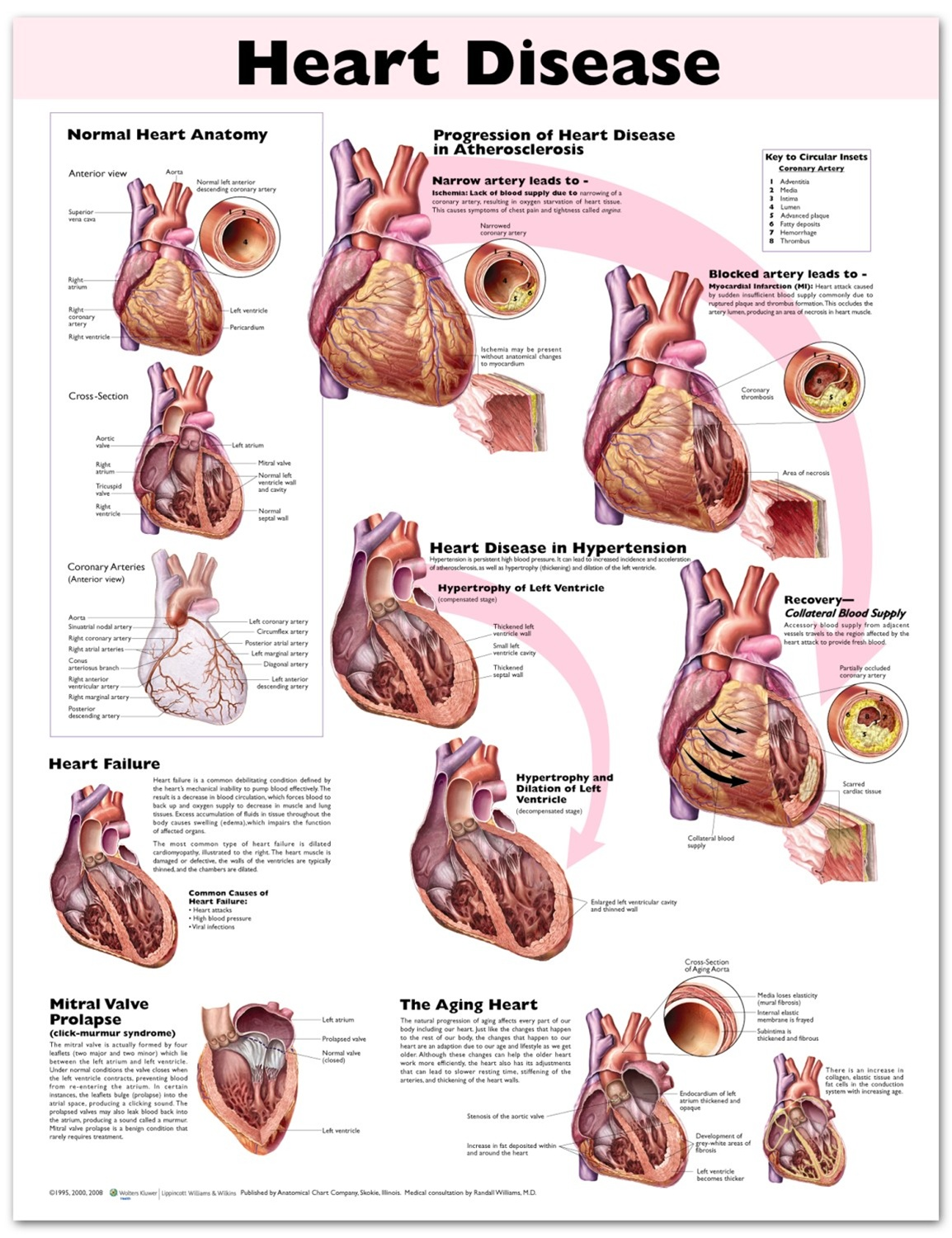 Heart Disease Anatomical Chart - Anatomy Models and Anatomical Charts