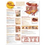Understanding Skin Cancer Anatomical Chart 2e- Laminated